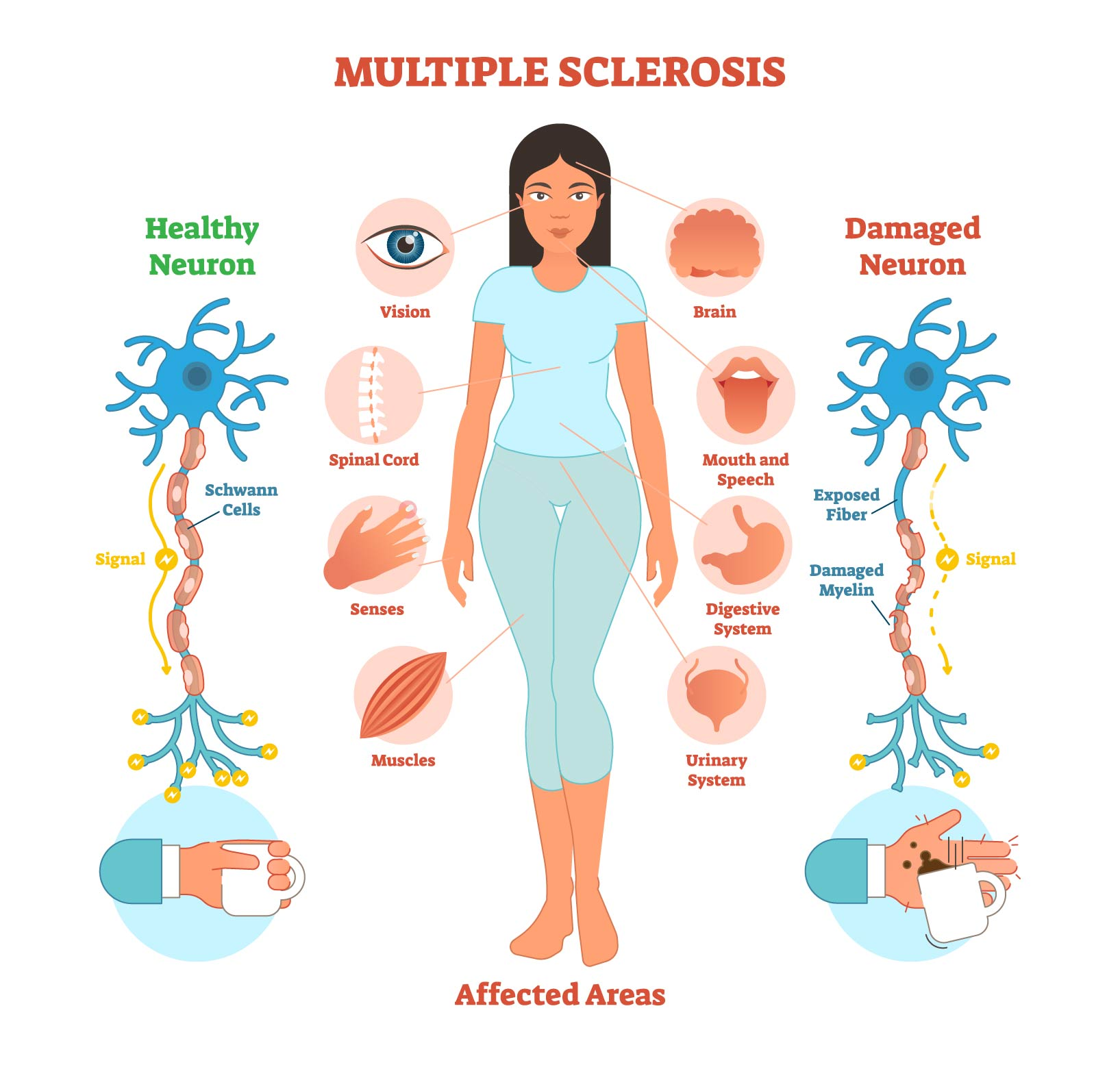 Multiple-Sclerosis-Infographic